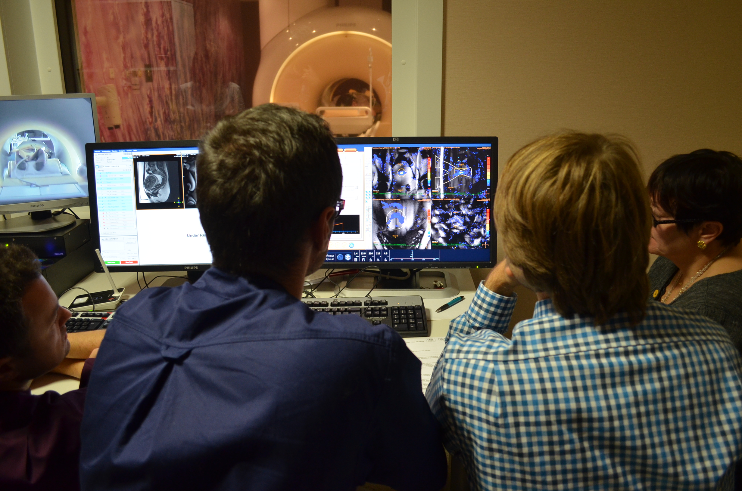 Termoablacja ultradźwiękowa