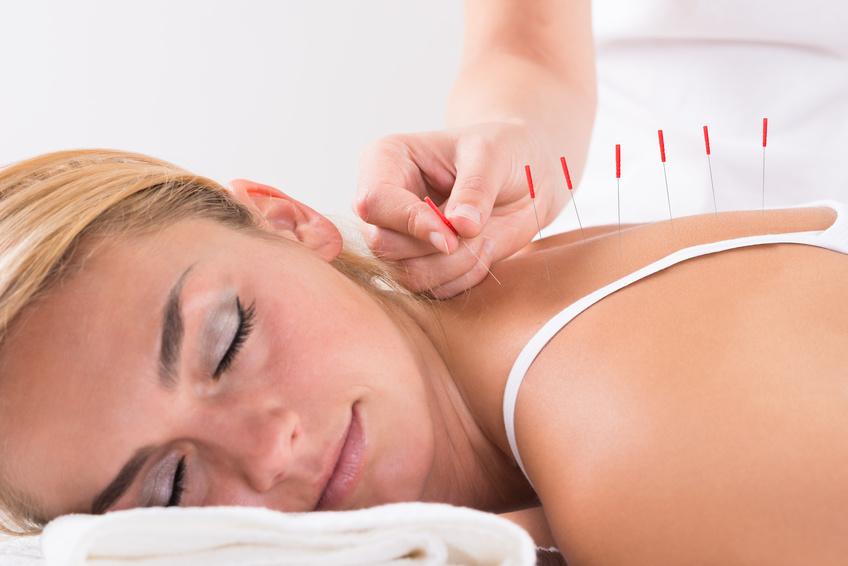 akupunktura na płodność