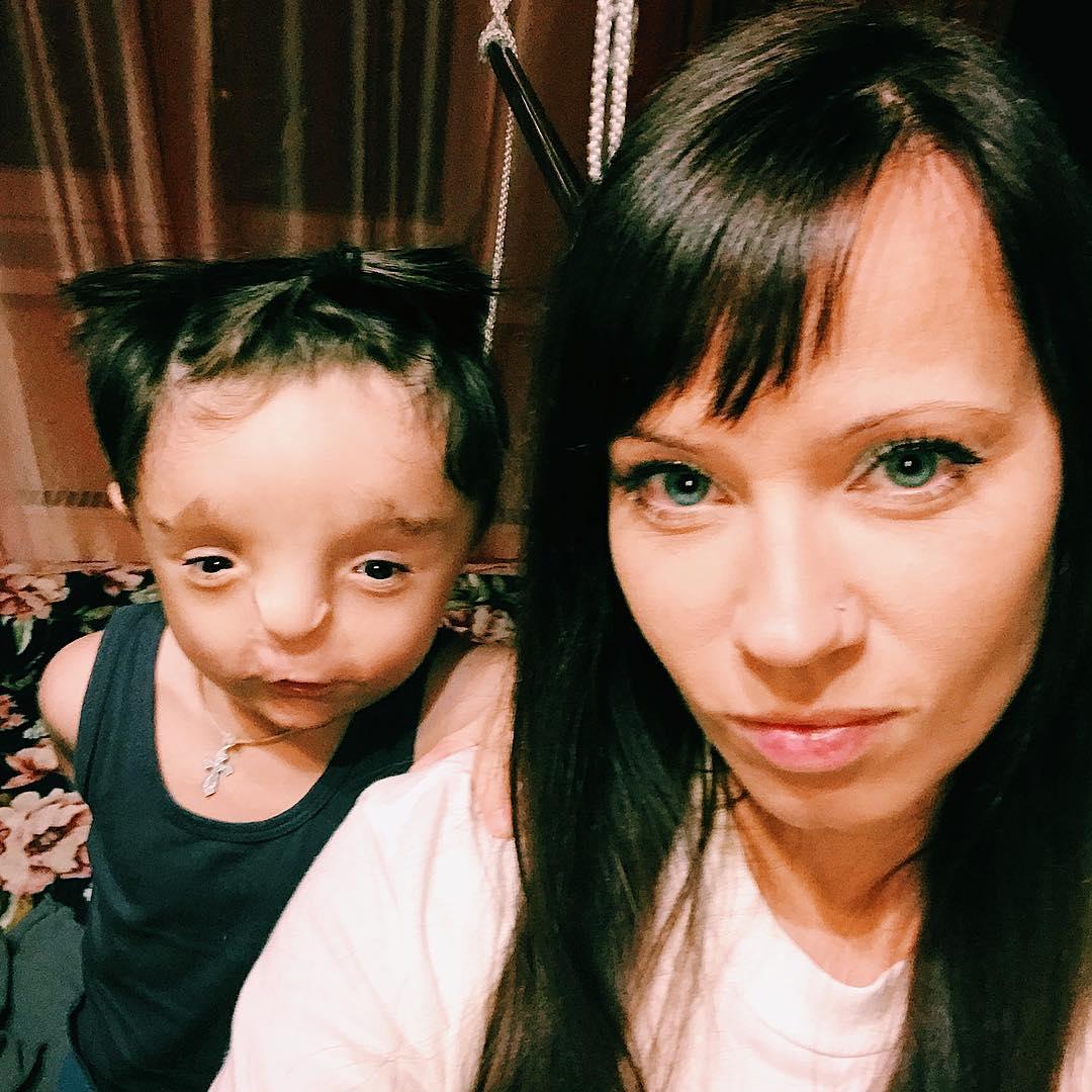 Adoptowała chore dziecko, spotkał ją hejt
