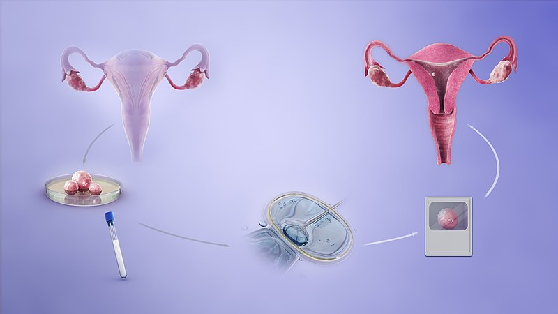 Ciekawostki o in vitro /Grafika ilustrująca procedurę in vitro