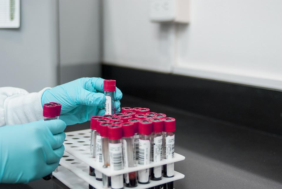 Dłoń analityka laboratoryjnego, a w niej - próbki krwi. Ilustracja do tekstu: Badania prenatalne: przyjdź na spotkanie i wygraj badania